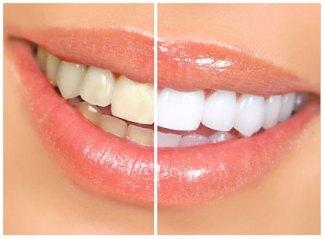 whitening teeth.jpg